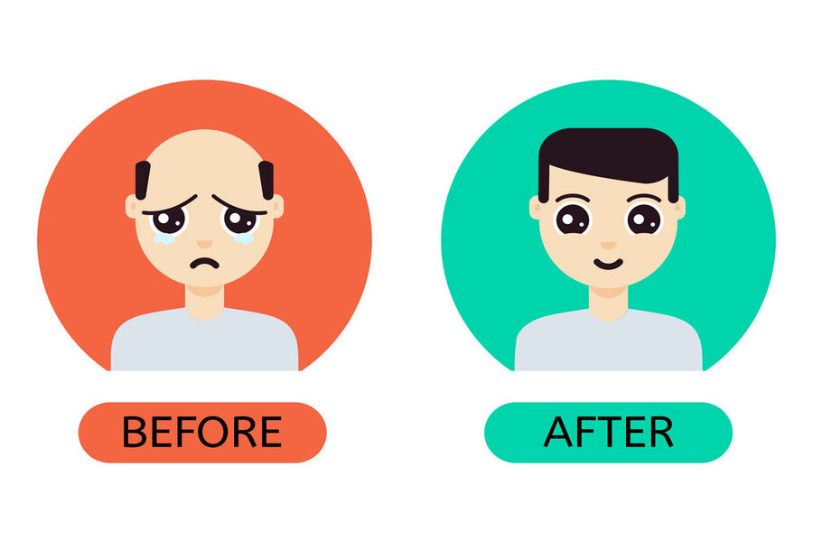 Get Effective Hair Transplant Surgery In India With Top Surgeons