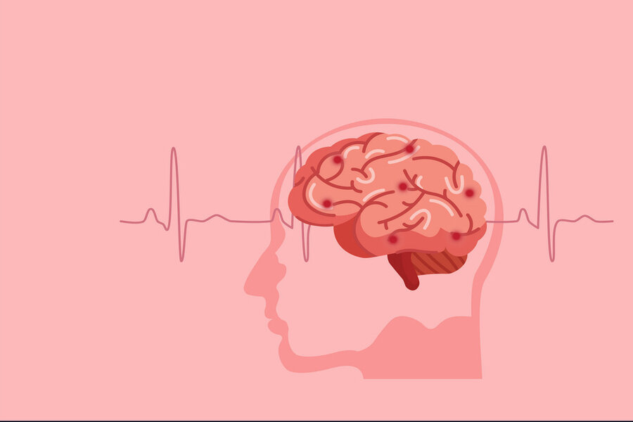 Examine The Symptoms Of Blood Clot In Brain & Get It Treated