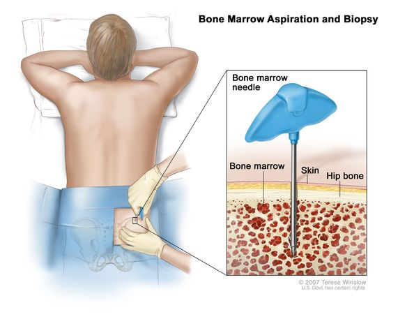 Learn About How A Bone Marrow Transplantation Takes Place
