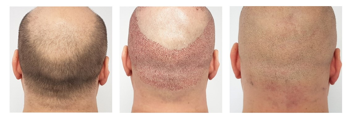 What Happens After A Hair Transplant