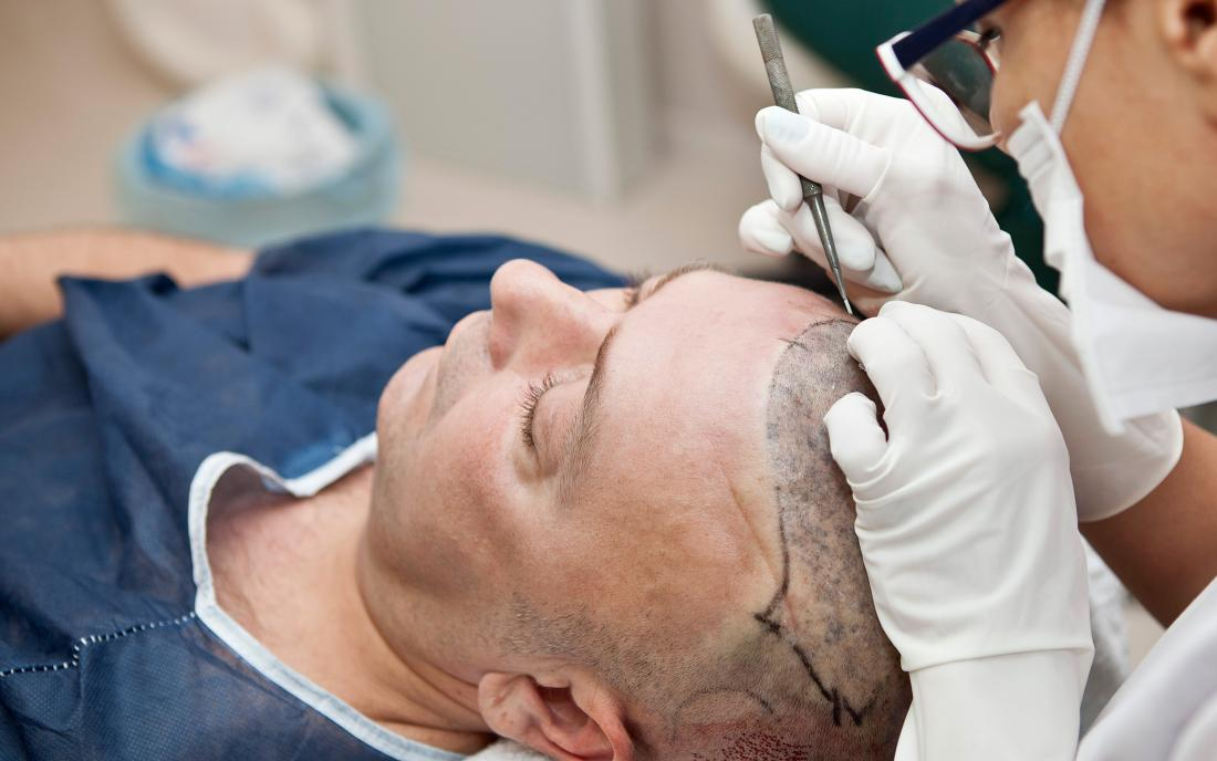 What Happens During A Hair Transplant